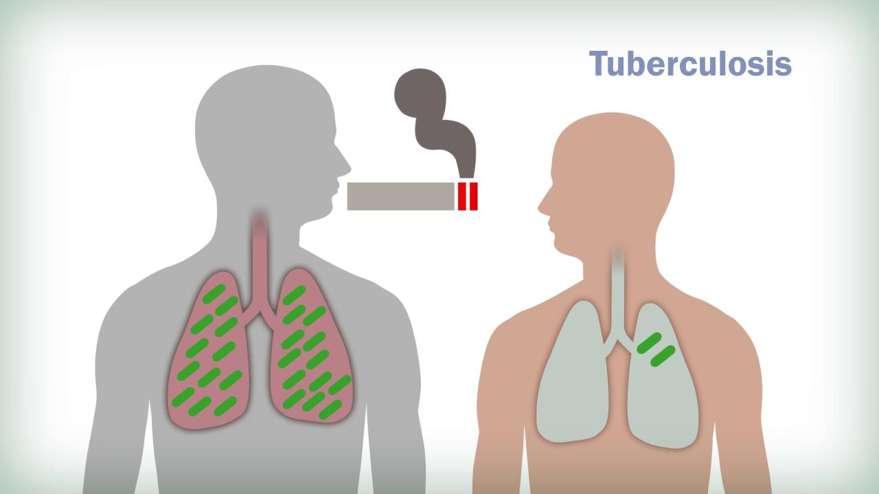 tobacco-control-course-MultiMension04